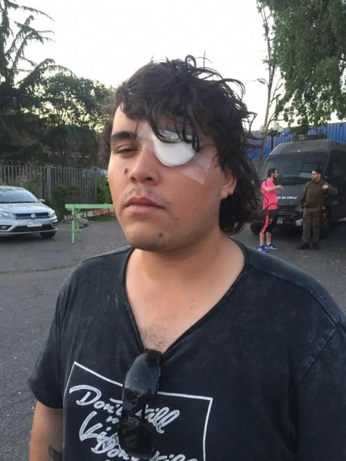 El estudiante de topografía Ángel Mella afuera del Hospital del Salvador.