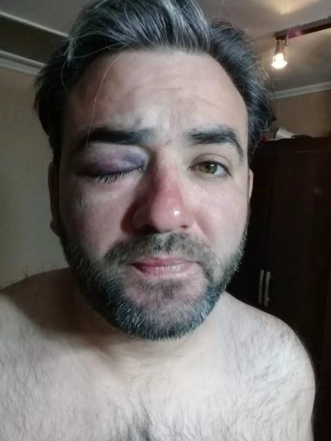 Carlos Morán muestra el estado de su ojo luego de ser impactado de lleno por el carro lanza aguas.