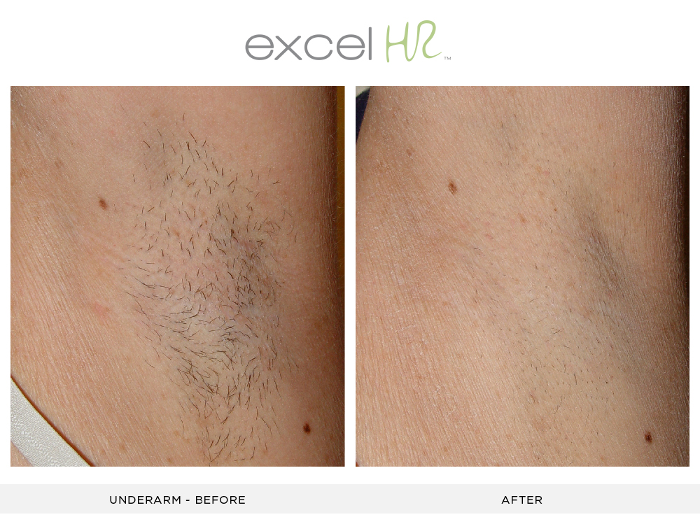 Before and After Laser Hair Removal underarms
