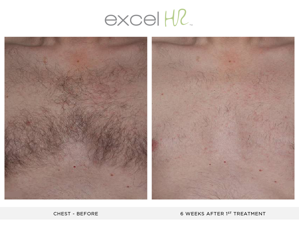 Before and After Laser Hair Removal chest