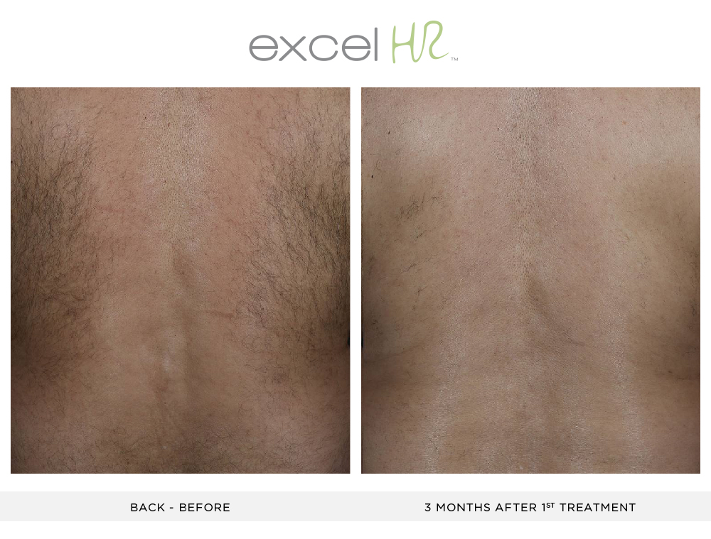 Before and After Laser Hair Removal back