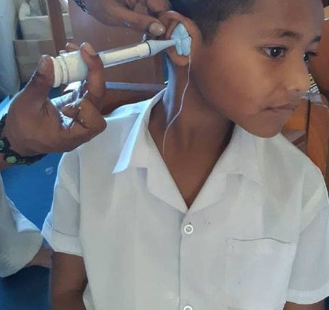 A Fijian boy has an ear mold made by an audiologist.