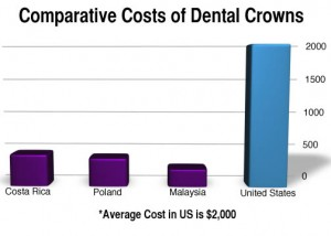 Dental Crown Cost Comparison