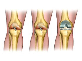 Total Knee Replacement: Facts