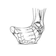 What To Do If You Sprain Your Ankle While Hiking