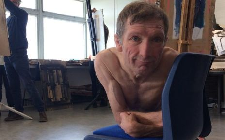 95260009 p04xlh3d - How a life model uses nudity to explain his disability