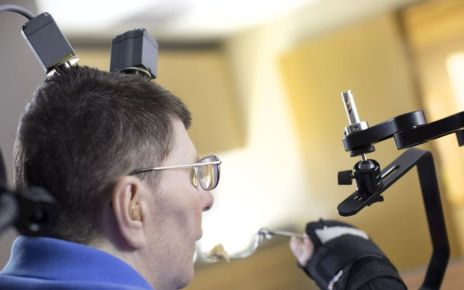 95352045 casestudy3 - Paralysed man feeds himself with help of implants