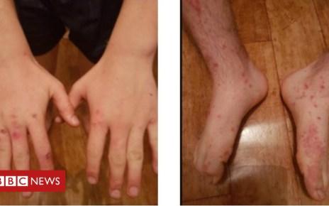 102045568 49bc863c 8e96 4d02 9c0f 002eb8bfa656 - Teenager's cowpox diagnosis surprises doctors