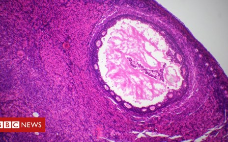 102262112 gettyimages 924322324 - Artificial ovary fertility treatment developed by scientists