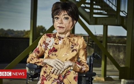 103496095 bbc liz carr ed - Broadcasters commit to doubling disabled employees by 2020