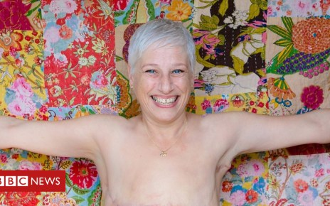 103519641 p06lpfdd - Why I'm happy 'living flat' after breast cancer
