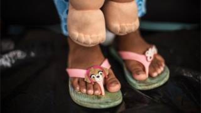 A migrant child in her flip-flops.