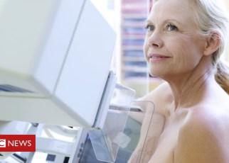 101137559 f0029363 mammography spl - Breast cancer screening error 'overstated'
