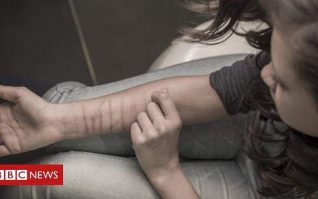 104737017 selfharm - Teenage victims 'more likely to self-harm'