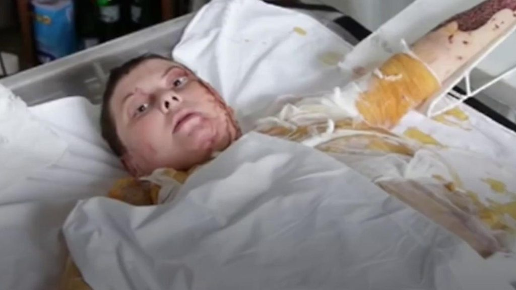 p06r2gvh - Ukraine official charged over acid killing