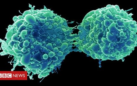 107743754 c0309017 dividing bladder cancer cells sem spl - Bladder cancer 'attacked and killed by common cold virus'