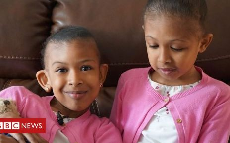 107916294 p07h3jvl - Conjoined twins: Sisters meet surgeons who separated them