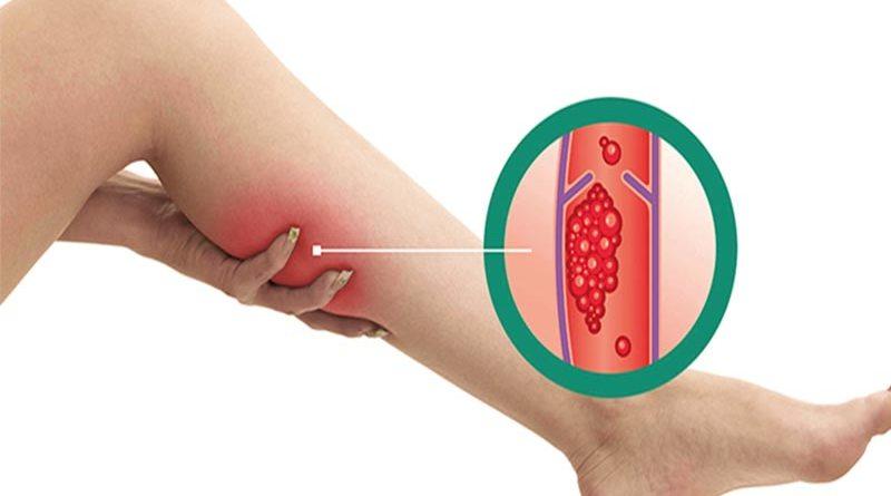 Alimentação inadequada pode aumentar os riscos de trombose
