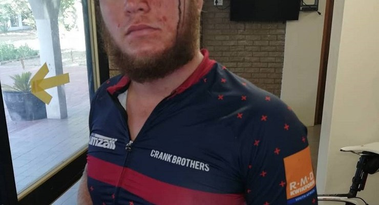 Jandre du Raan (pictured) and Brendon Jacobs were badly hurt in a criminal assault