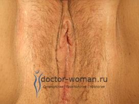 Мнение практикующего гинеколога: возможности лабиопластики с примерами