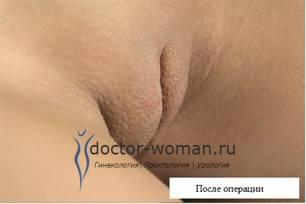 Красивые малые половые губы. Фото до и после лабиопластики