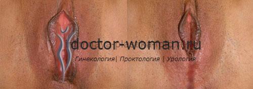 Фото 1. Вагинопластика до и после
