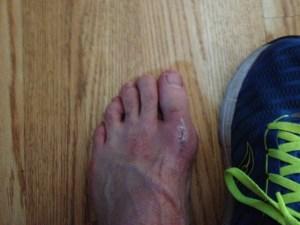 12-26-12 Run Foot