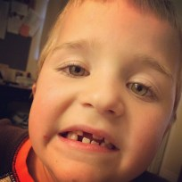 Not to be outdone, David pulled his own tooth.