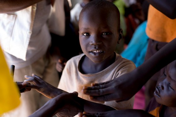 Global vaccination prevents outbreaks. Image of an African child getting a vaccine