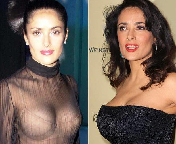 опасности пластики груди