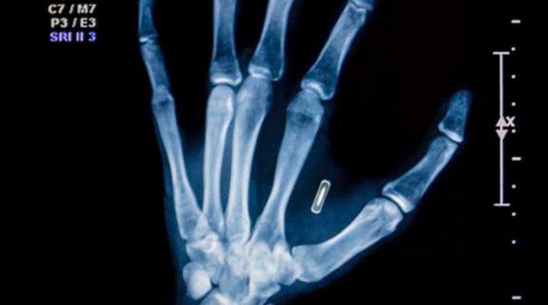 Implantes inteligentes dispositivos bajo la piel para abrir puertas o viajar en tren