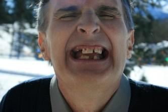 #22 Broken Teeth2