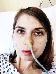 An image of me looking worse for wear with an NG tube up my nose.