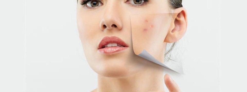 De la tratarea acneei până la lupta cu punctele negre, iată cu ce te pot ajuta cartofii!