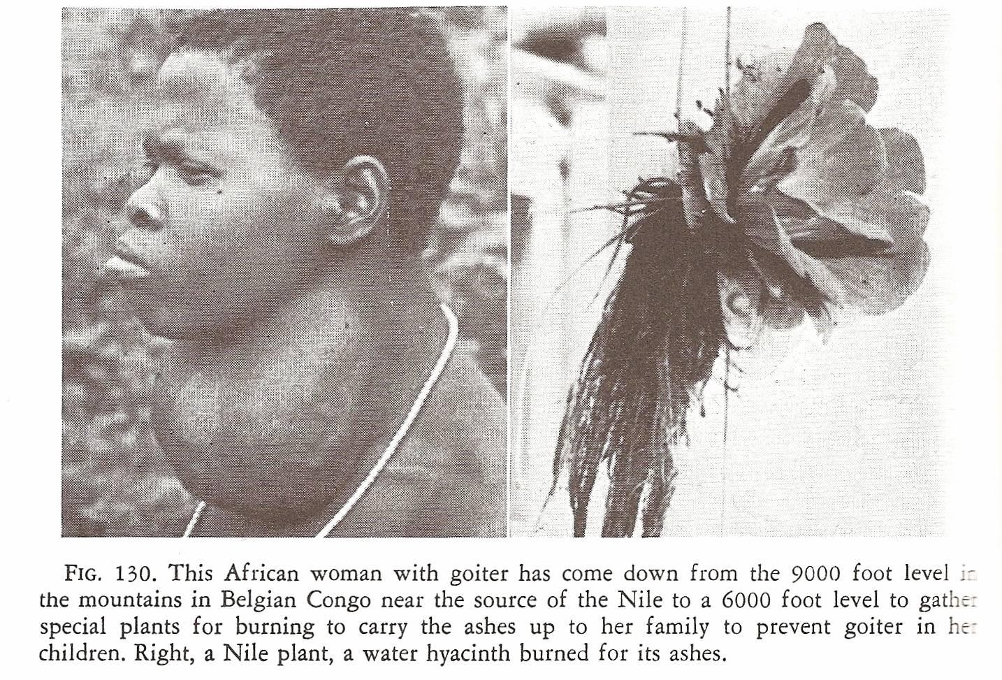Weston Price Africa Goitre