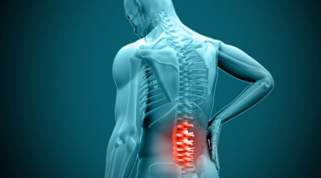 Acupressure for Herniated Disk