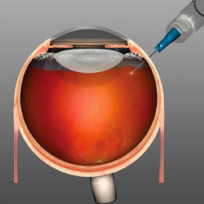 Inyecciones intravítreas. Enfermedades y tratamientos para los problemas oculares por el Instituto Oftalmológico Recoletas.