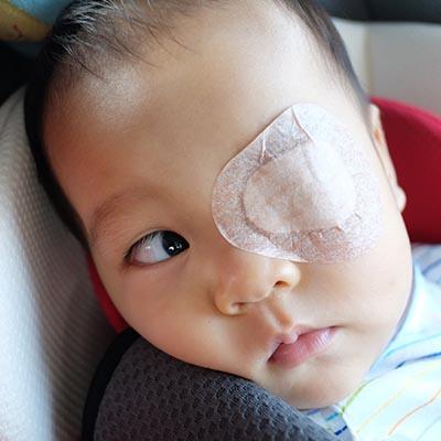 Estrabismo infantil. Enfermedades y tratamientos para los problemas oculares por el Instituto Oftalmológico Recoletas.