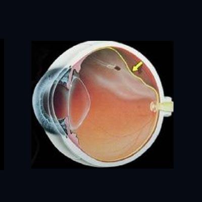 Agujero macular IOR Instituto oftalmológico