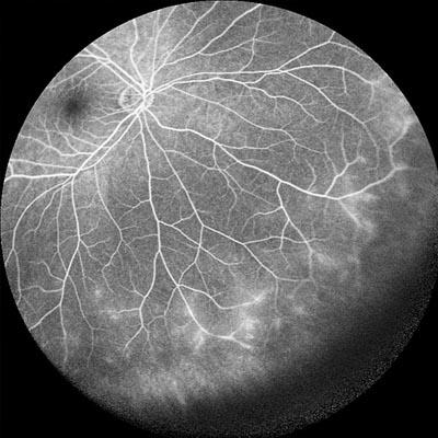 Uveítis. Enfermedades y tratamientos oculares que se tratan en el Instituto Oftalmológico Recoletas.