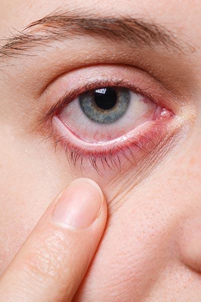 Blefaritis. Enfermedades y tratamientos oculares relativos a la conjuntivitis que se tratan en el Instituto Oftalmológico Recoletas