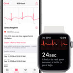 Electrocardiogramas en el <stro data-recalc-dims=