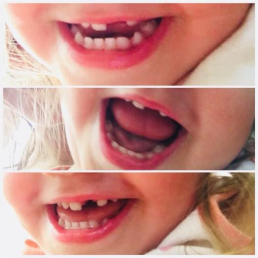 Με ή χωρίς δόντια, το χαμόγελο της κορούλας μας παραμένει ακαταμάχητο!