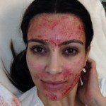 Kim Kardashian vampire facelift: stem cells in there?