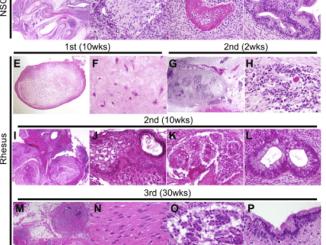 monkey iPSC tumors