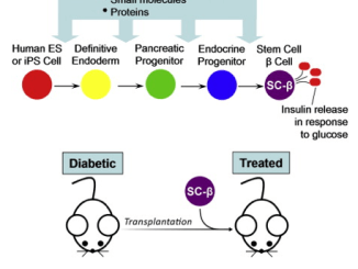 Harvard stem cells Diabetes