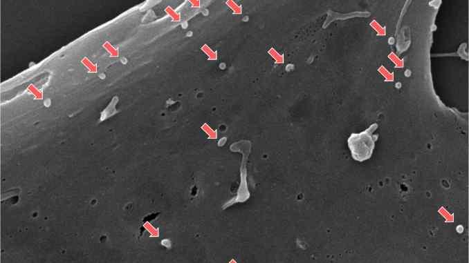 Mesenchymal stem cell exosomes