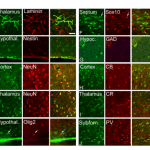 Stem cell transplants: hIPSC and hESC behave similarly in brain & often fuse with host cells