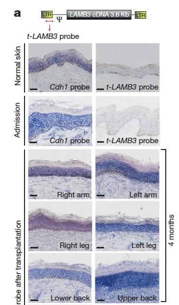 Hirsch et al epidermal regeneration Fig. 2a