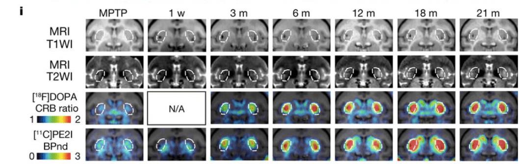Fig 3i Kikuchi, et al. Nature, 2017 IPS cell Parkinson's